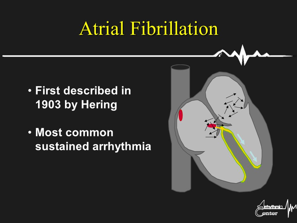 First described in 1903 by Hering Most common sustained arrhythmia Atrial Fibrillation