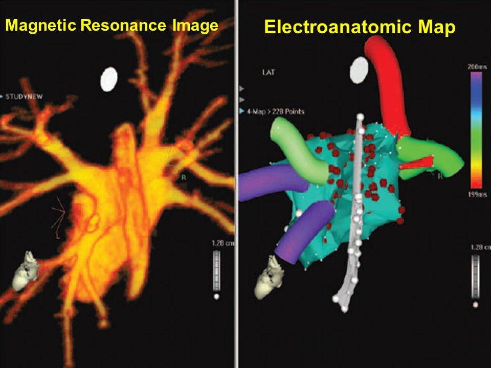Magnetic Resonance Image Electroanatomic Map