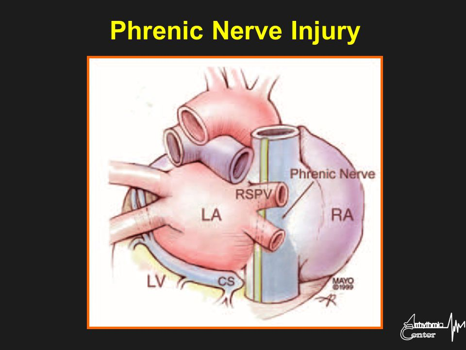 Phrenic Nerve Injury