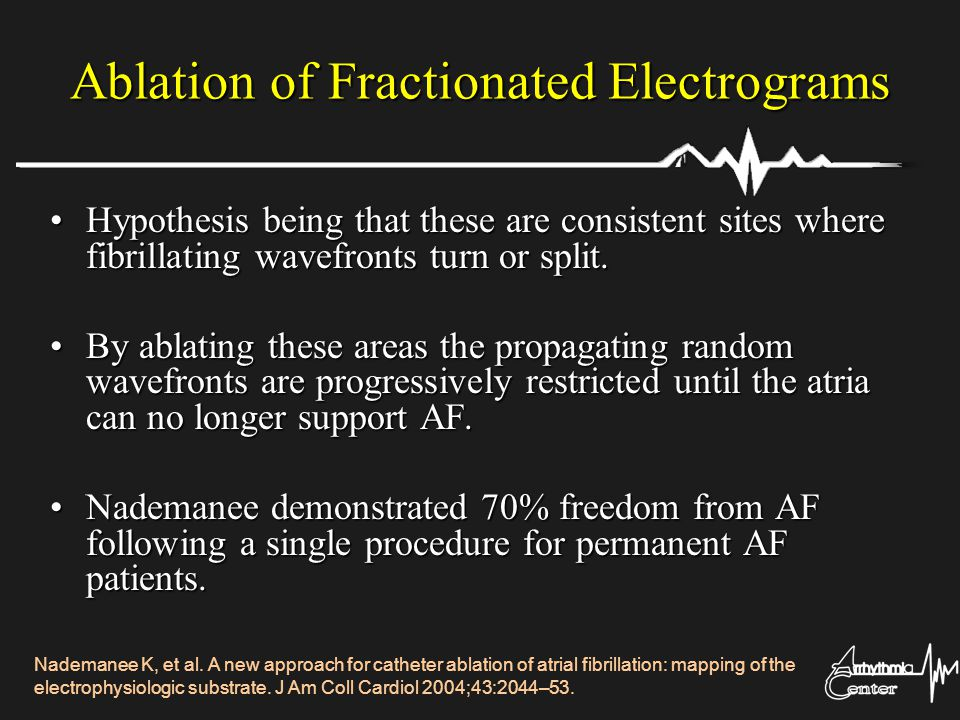Ablation of Fractionated Electrograms Hypothesis being that these are consistent sites where fibrillating wavefronts turn or split.Hypothesis being th