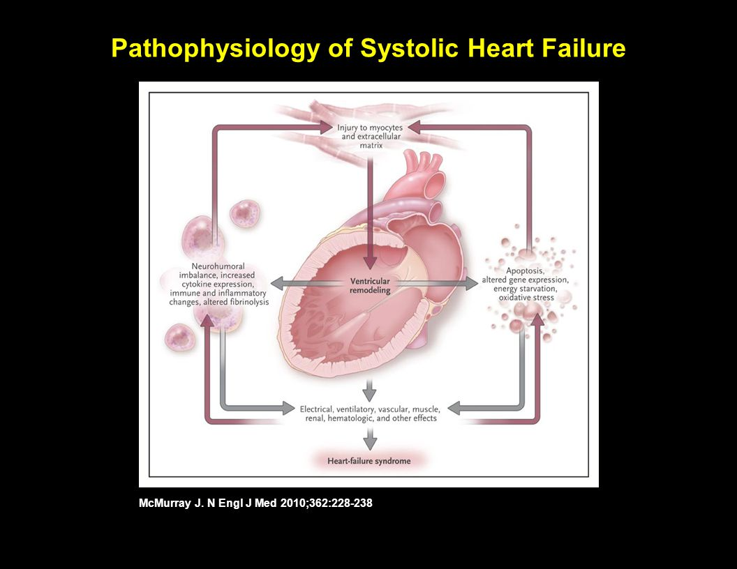 Clinical Classifications of Heart Failure Severity McMurray J. N Engl J Med 2010;362:228-238