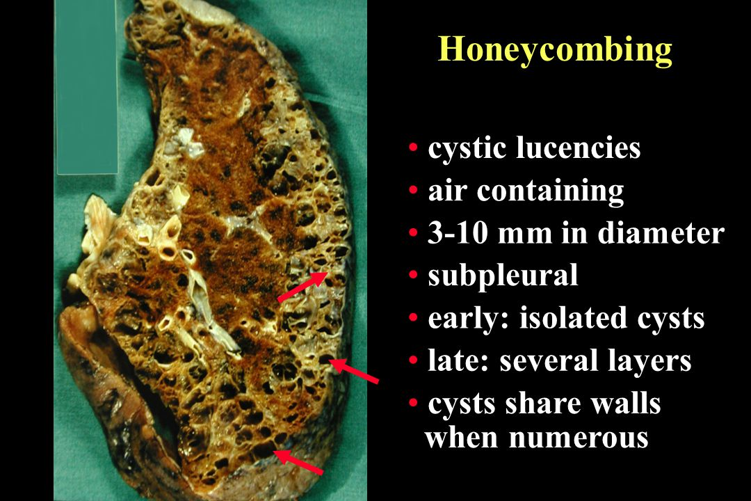 Honeycombing cystic lucencies air containing 3-10 mm in diameter early: isolated cysts late: several layers cysts share walls when numerous subpleural