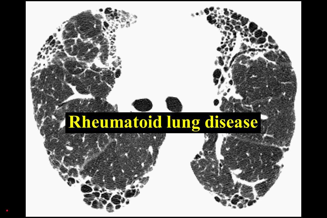 Rheumatoid lung disease.