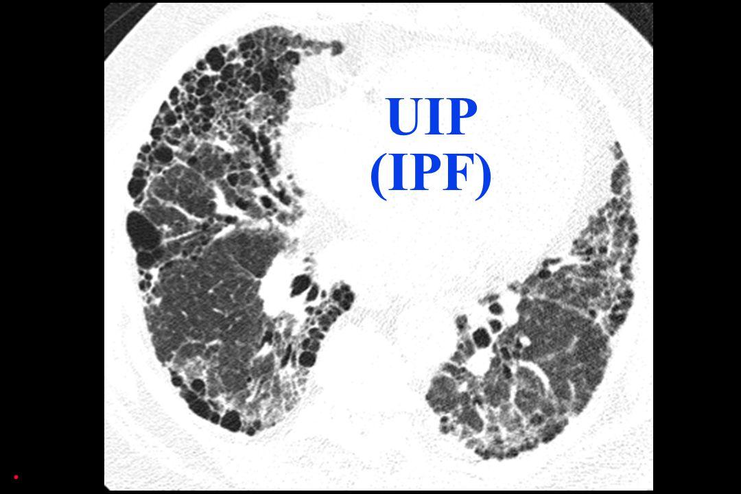 UIP (IPF).