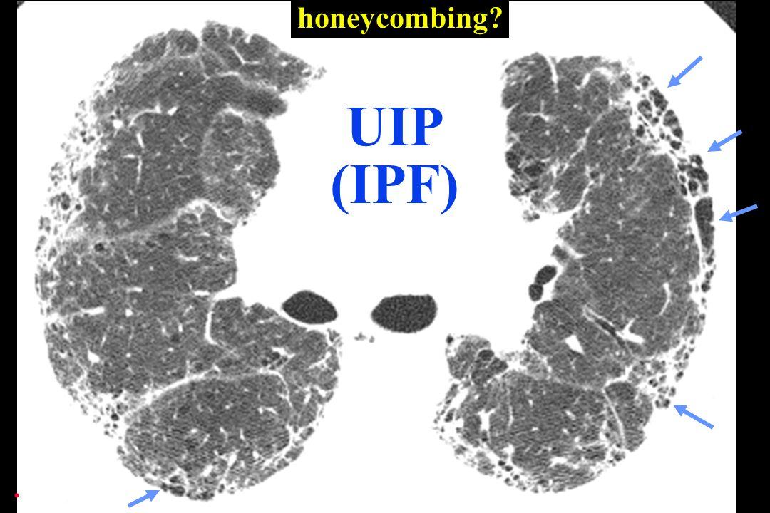 . honeycombing?