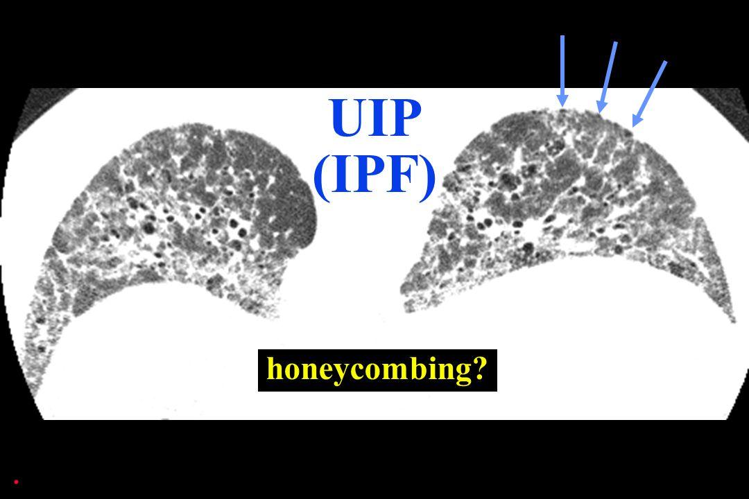 . UIP (IPF)
