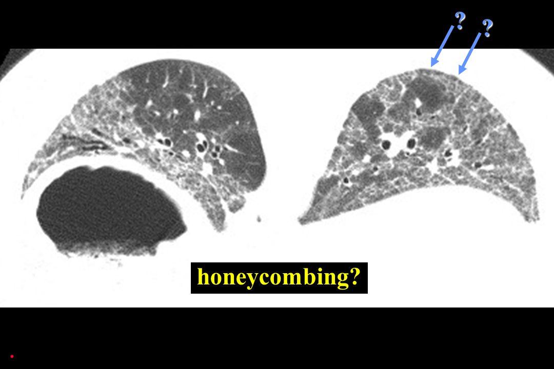 honeycombing?. ??