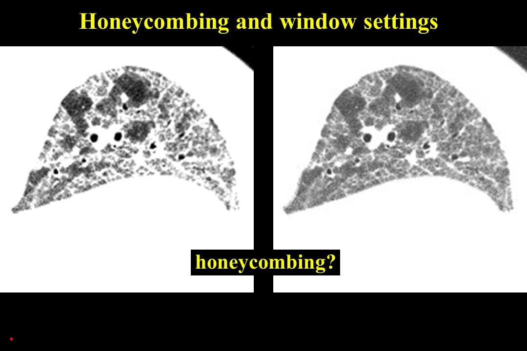 . Honeycombing and window settings