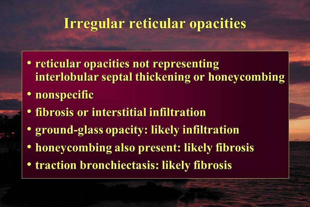 Irregular reticular opacities reticular opacities not representing interlobular septal thickening or honeycombing reticular opacities not representing