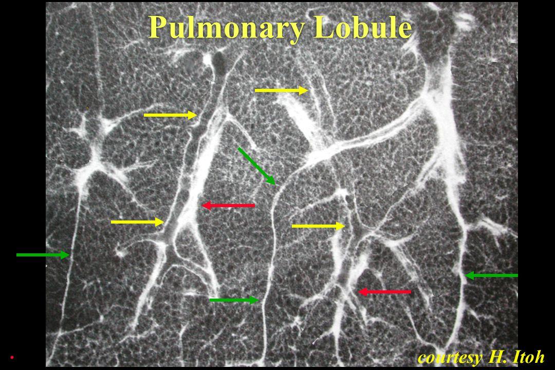 courtesy H. Itoh Pulmonary Lobule.