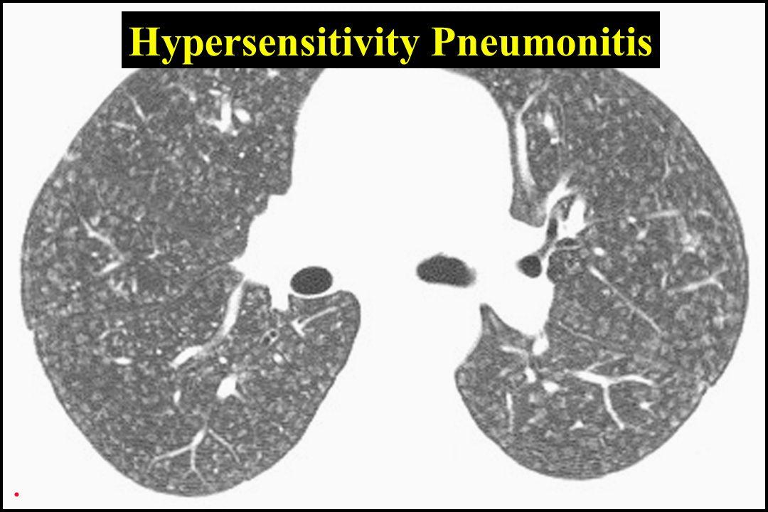 Hypersensitivity Pneumonitis.