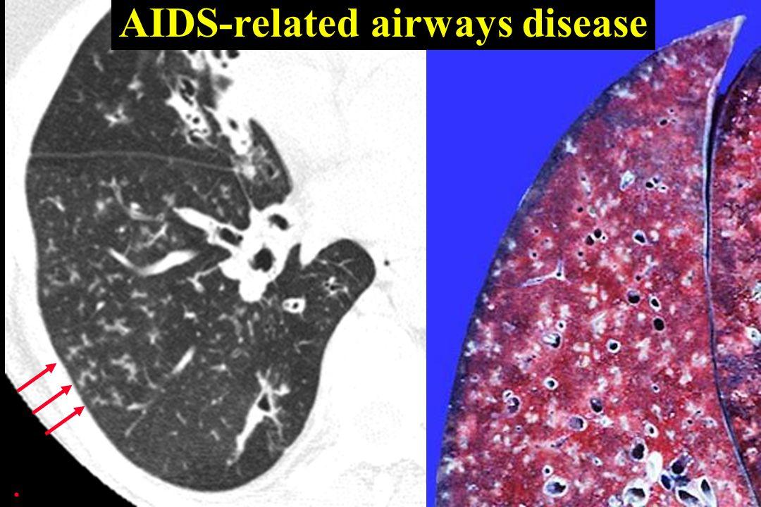 AIDS-related airways disease.