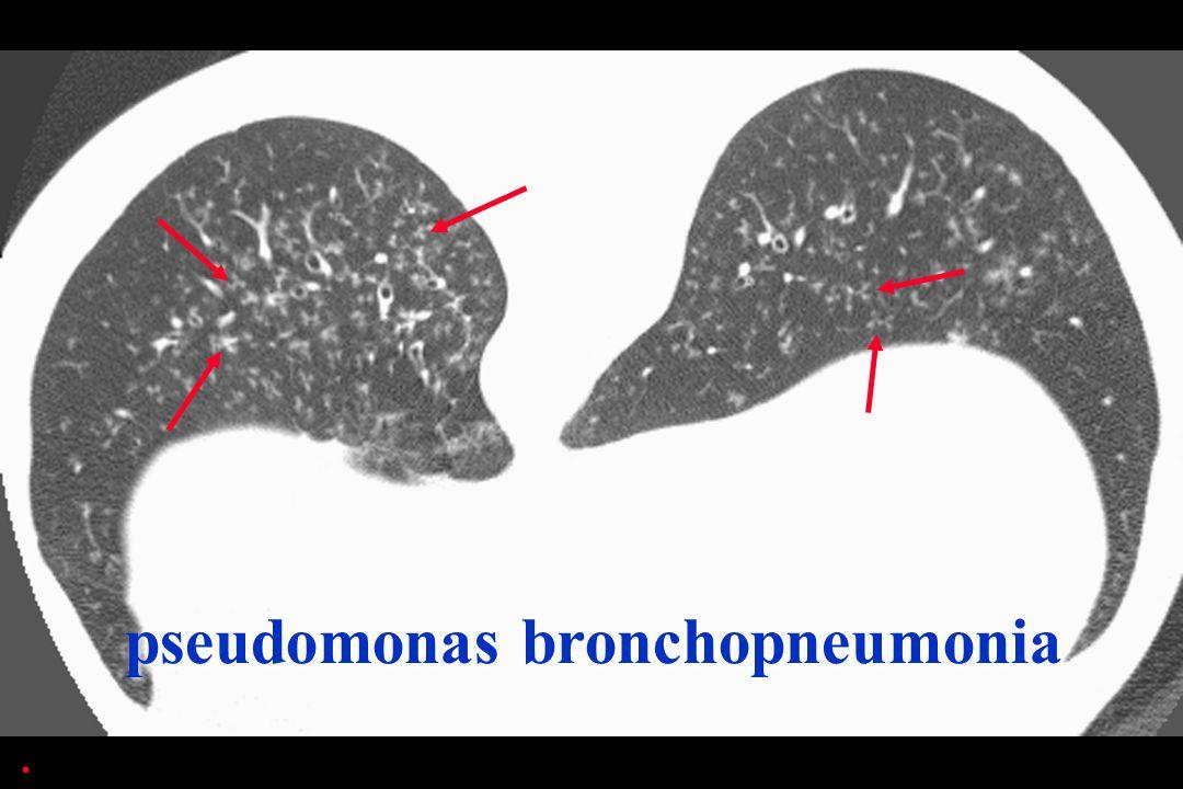 pseudomonas bronchopneumonia.