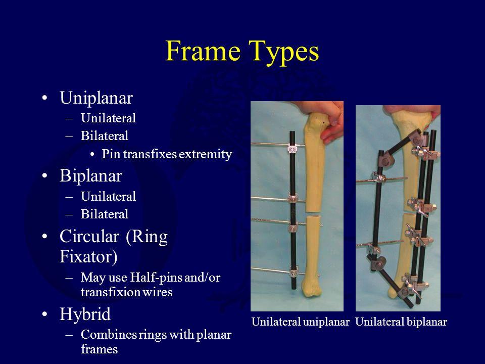 Frame Types Uniplanar –Unilateral –Bilateral Pin transfixes extremity Biplanar –Unilateral –Bilateral Circular (Ring Fixator) –May use Half-pins and/o