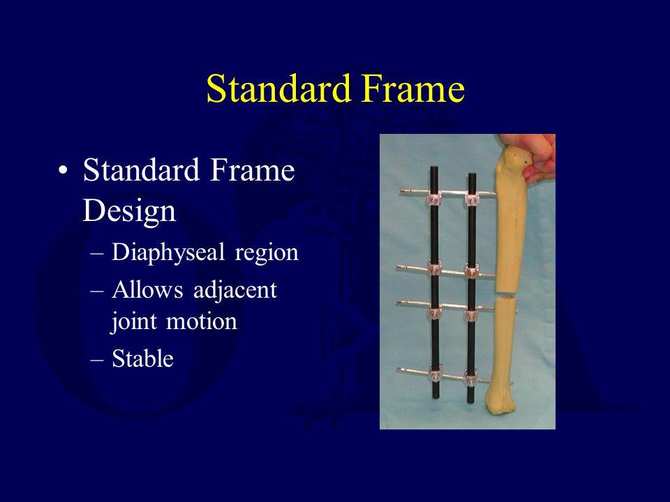Standard Frame Standard Frame Design –Diaphyseal region –Allows adjacent joint motion –Stable