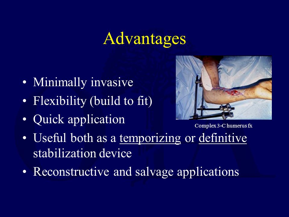 Disadvantages Mechanical –Distraction of fracture site –Inadequate immobilization –Pin-bone interface failure –Weight/bulk –Refracture (pediatric femur) Biologic –Infection (pin track) May preclude conversion to IM nailing or internal fixation –Neurovascular injury –Tethering of muscle –Soft tissue contracture May result in malunion/nonunion, loss of function