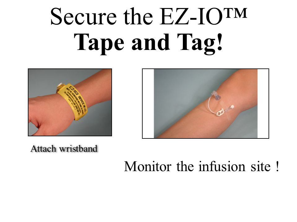 Secure the EZ-IO™ Tape and Tag! Monitor the infusion site ! Attach wristband