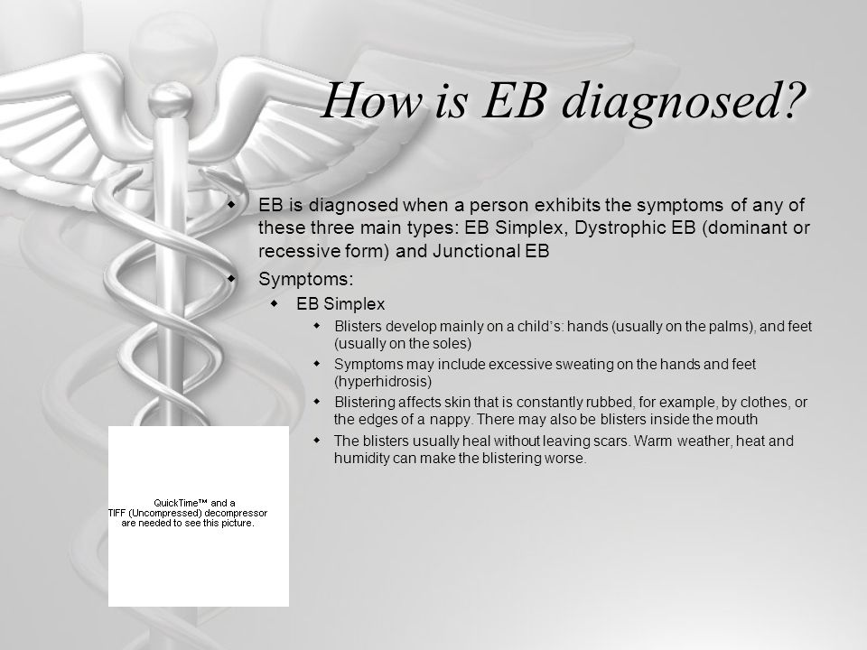 How is EB diagnosed?  EB is diagnosed when a person exhibits the symptoms of any of these three main types: EB Simplex, Dystrophic EB (dominant or re