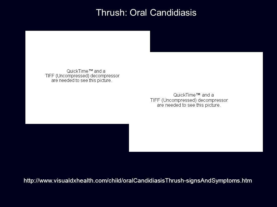 http://www.visualdxhealth.com/child/oralCandidiasisThrush-signsAndSymptoms.htm Thrush: Oral Candidiasis