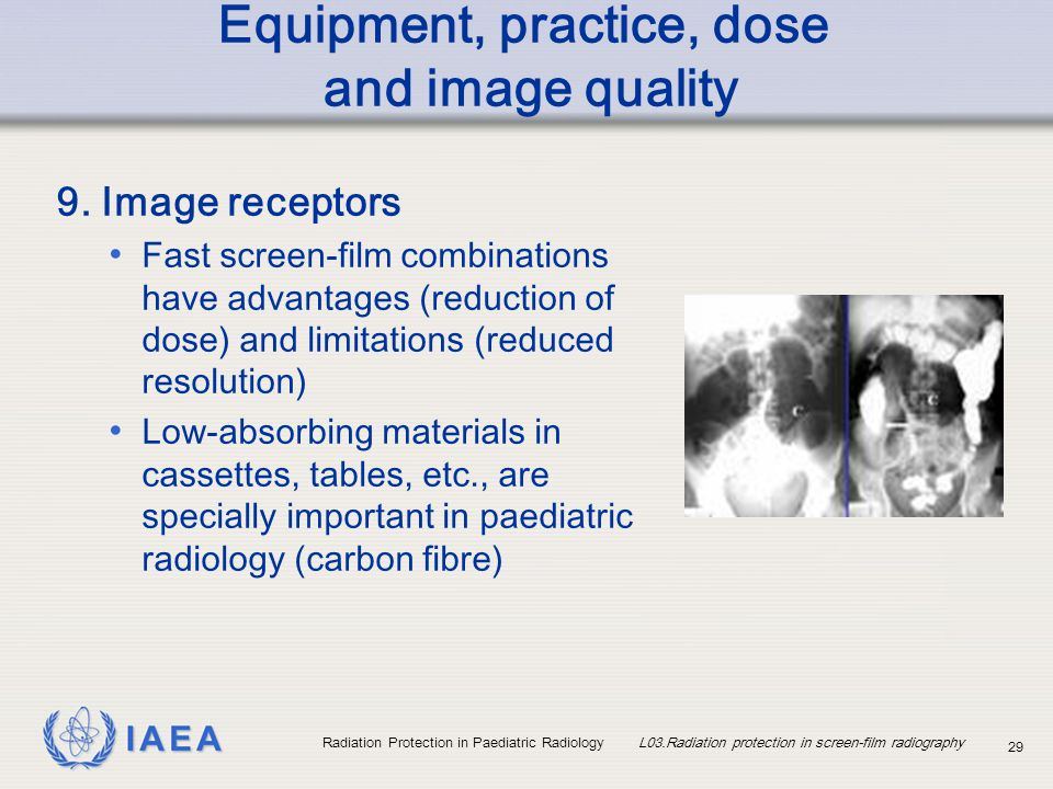 IAEA Radiation Protection in Paediatric Radiology L03.Radiation protection in screen-film radiography 29 Equipment, practice, dose and image quality 9