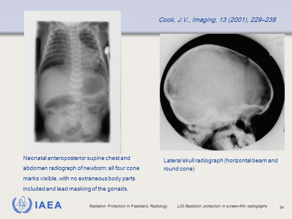 IAEA Radiation Protection in Paediatric Radiology L03.Radiation protection in screen-film radiography 34 Lateral skull radiograph (horizontal beam and