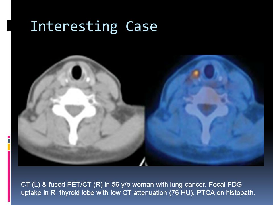 Interesting Case CT (L) & fused PET/CT (R) in 56 y/o woman with lung cancer. Focal FDG uptake in R thyroid lobe with low CT attenuation (76 HU). PTCA
