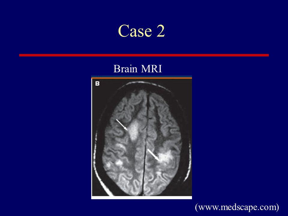 Case 2 (www.medscape.com) Brain MRI