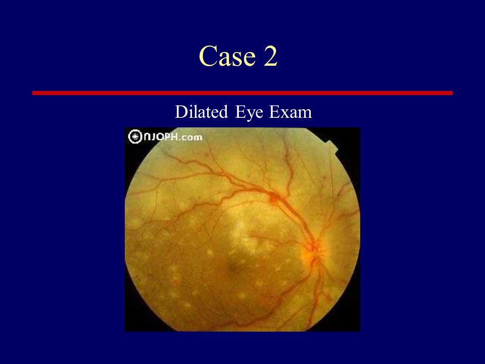 Case 2 Dilated Eye Exam
