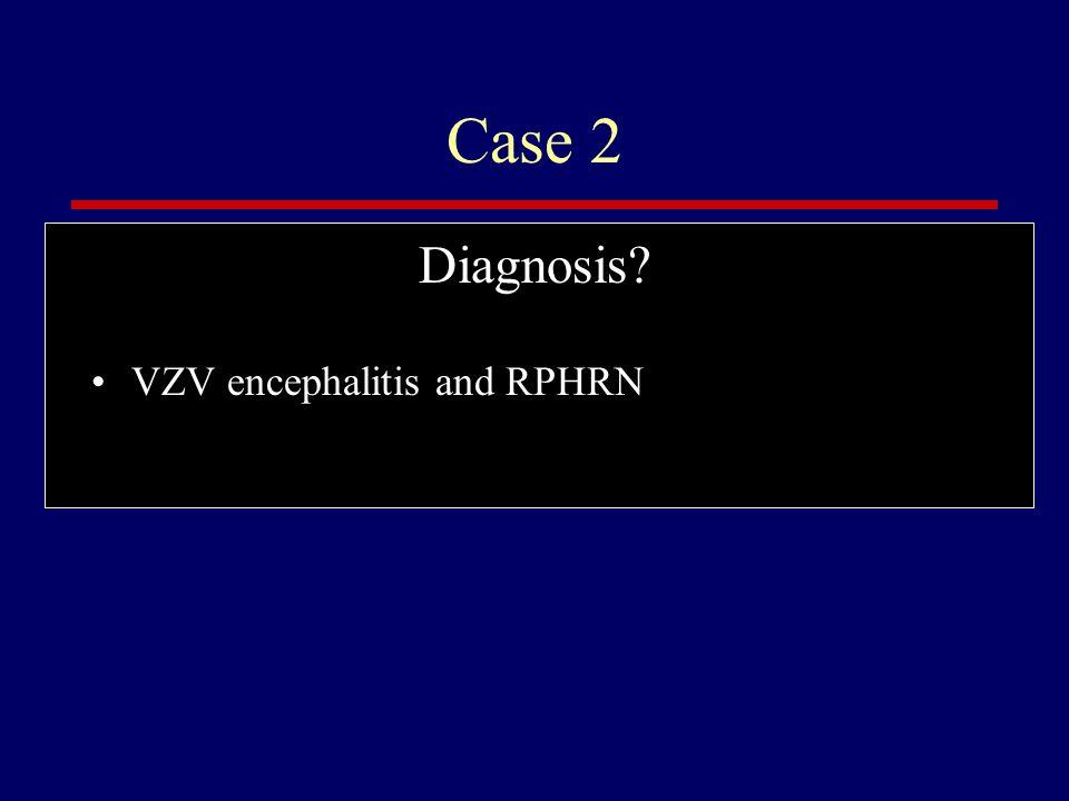 Case 2 Diagnosis? VZV encephalitis and RPHRN