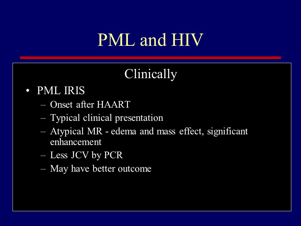 PML and HIV Diagnosis Typical MR findings - patchy white matter lesions (hyperintense on T2 and flair), 10-15% enhance with gadolinium CSF JCV PCR positive in 70 - 90% Brain biopsy