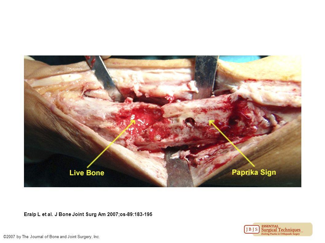Eralp L et al. J Bone Joint Surg Am 2007;os-89:183-195 ©2007 by The Journal of Bone and Joint Surgery, Inc.