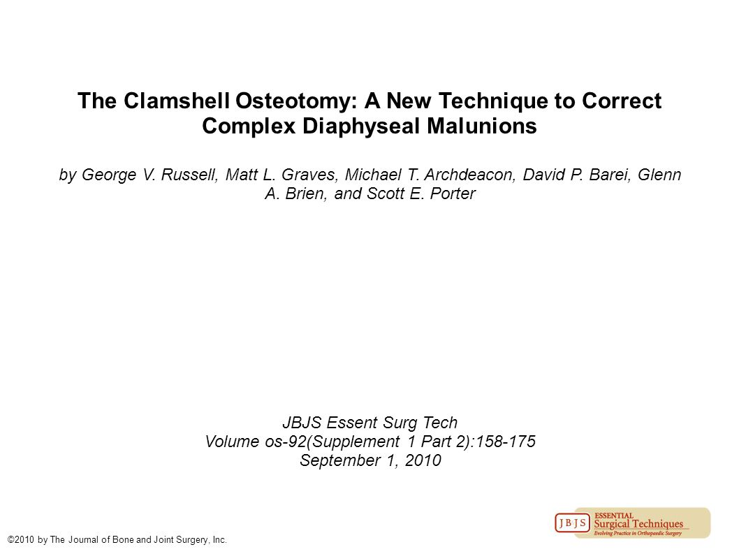 The Clamshell Osteotomy: A New Technique to Correct Complex Diaphyseal Malunions by George V. Russell, Matt L. Graves, Michael T. Archdeacon, David P.