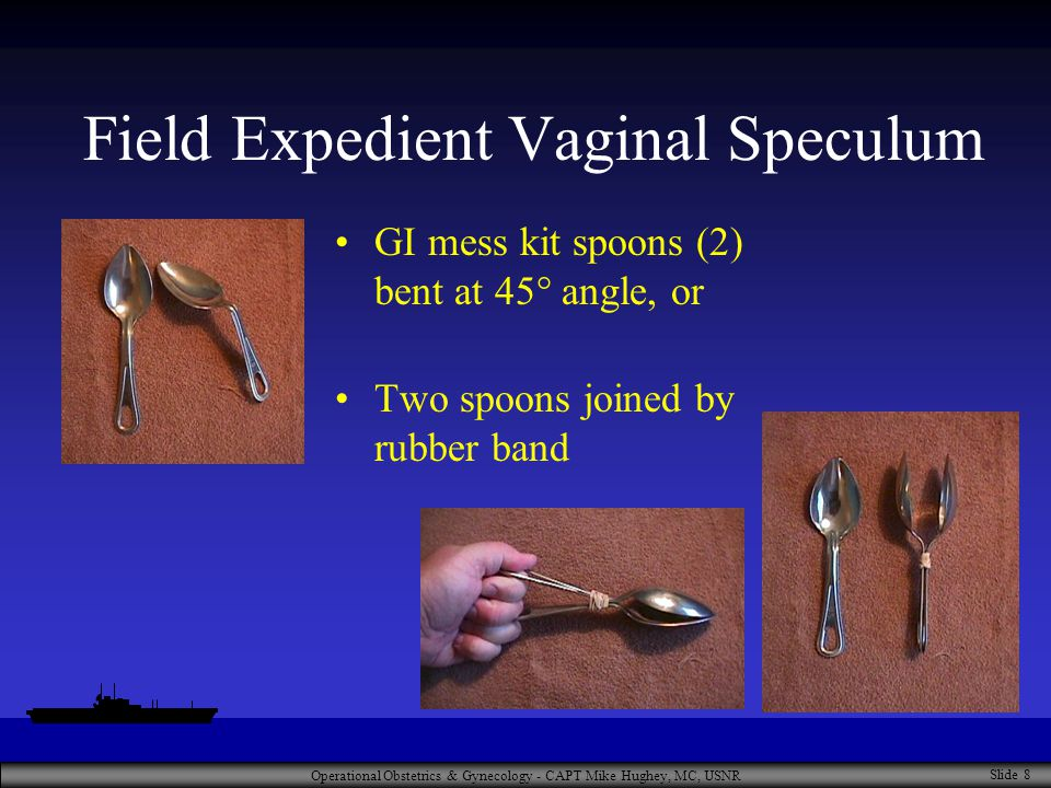 Operational Obstetrics & Gynecology - CAPT Mike Hughey, MC, USNR Slide 8 Field Expedient Vaginal Speculum GI mess kit spoons (2) bent at 45° angle, or Two spoons joined by rubber band