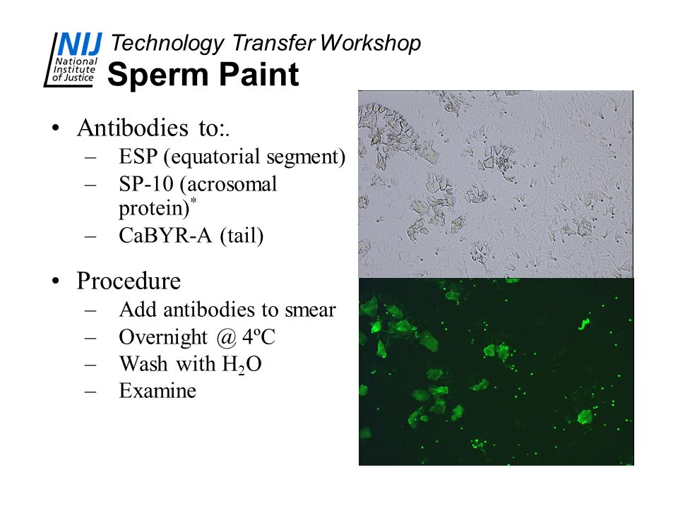 Technology Transfer Workshop Sperm Paint Antibodies to:. –ESP (equatorial segment) –SP-10 (acrosomal protein) * –CaBYR-A (tail) Procedure –Add antibod