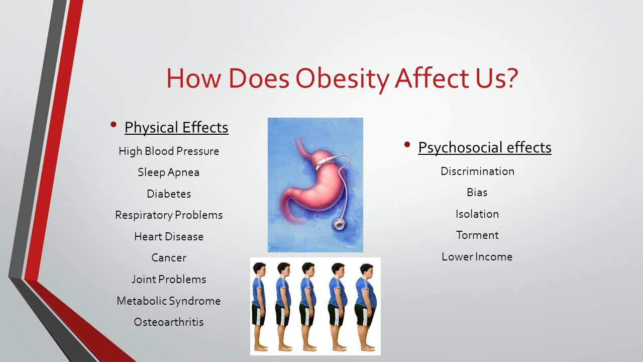 How Does Obesity Affect Us? Physical Effects High Blood Pressure Sleep Apnea Diabetes Respiratory Problems Heart Disease Cancer Joint Problems Metabol