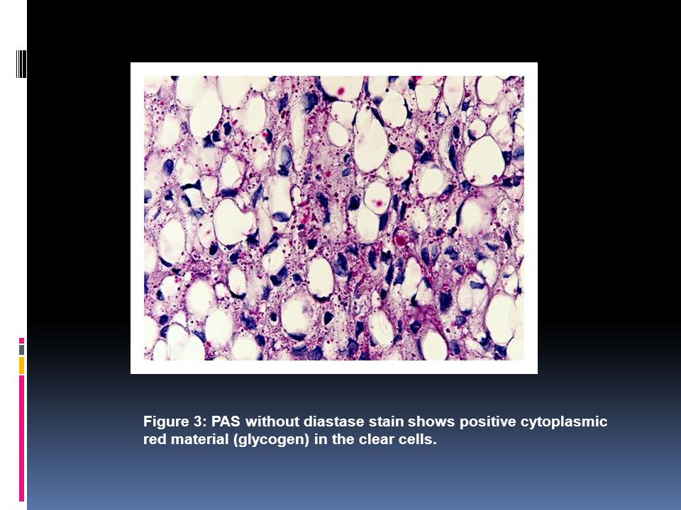 Figure 3: PAS without diastase stain shows positive cytoplasmic red material (glycogen) in the clear cells.