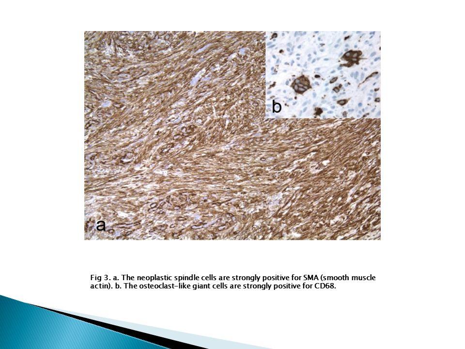  Biopsy of the leg nodule (Fig.