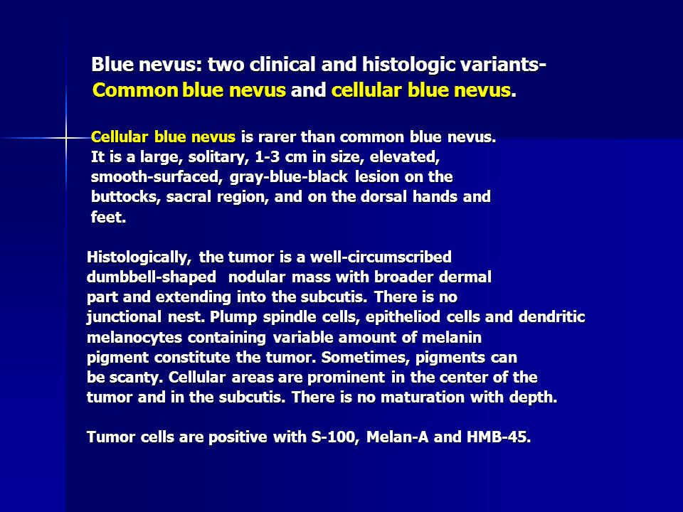 Blue nevus: two clinical and histologic variants- Blue nevus: two clinical and histologic variants- Common blue nevus and cellular blue nevus.