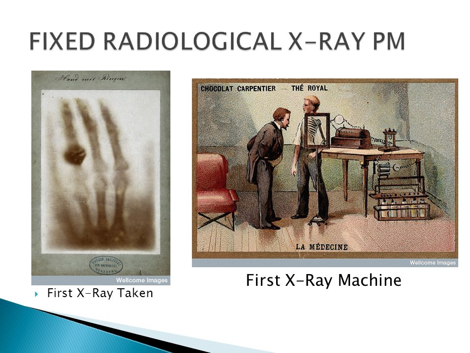  First X-Ray Taken First X-Ray Machine