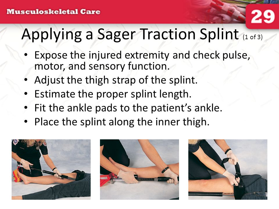 Applying a Sager Traction Splint (1 of 3) Expose the injured extremity and check pulse, motor, and sensory function. Adjust the thigh strap of the spl