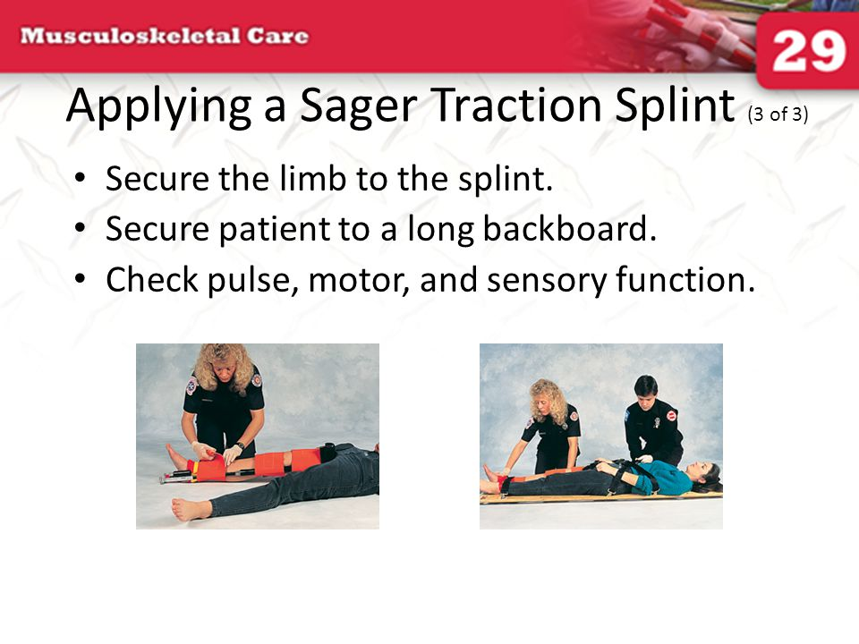 Applying a Sager Traction Splint (3 of 3) Secure the limb to the splint. Secure patient to a long backboard. Check pulse, motor, and sensory function.