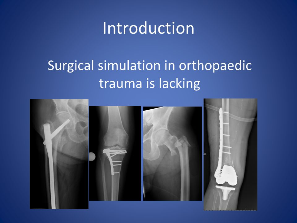 Benchtop models Leong et al.Validation of orthopaedic bench models for trauma surgery.