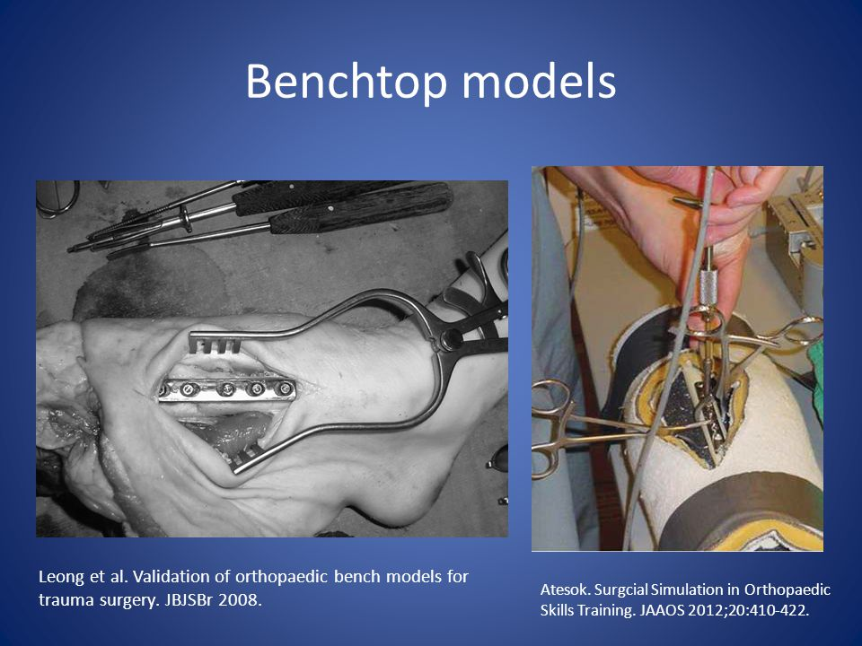 Benchtop models Leong et al. Validation of orthopaedic bench models for trauma surgery.