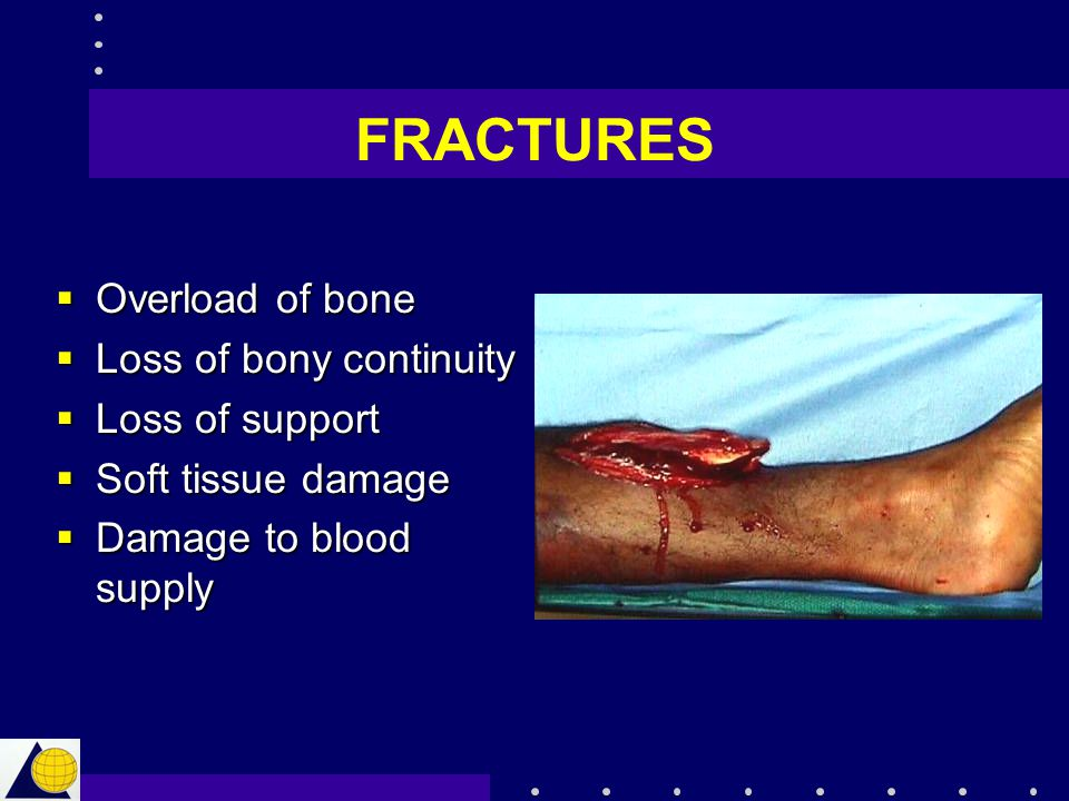 FRACTURES  Overload of bone  Loss of bony continuity  Loss of support  Soft tissue damage  Damage to blood supply