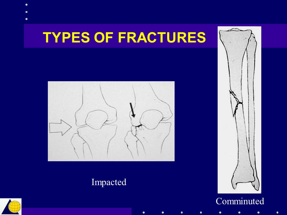 TYPES OF FRACTURES Impacted Comminuted