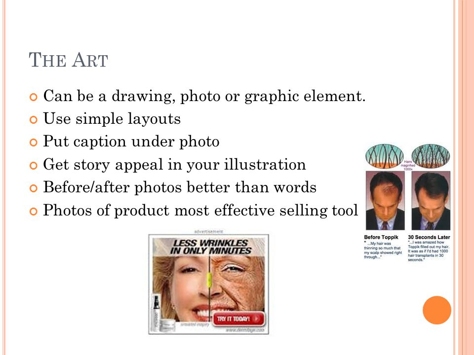 T HE A RT Can be a drawing, photo or graphic element. Use simple layouts Put caption under photo Get story appeal in your illustration Before/after ph