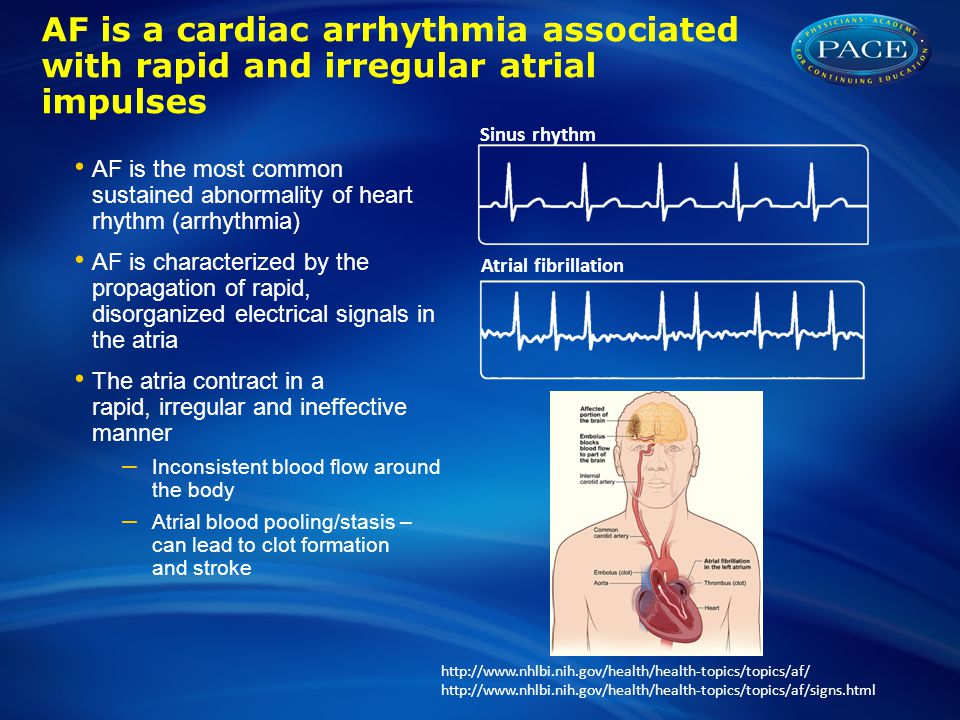 AF is a cardiac arrhythmia associated with rapid and irregular atrial impulses AF is the most common sustained abnormality of heart rhythm (arrhythmia