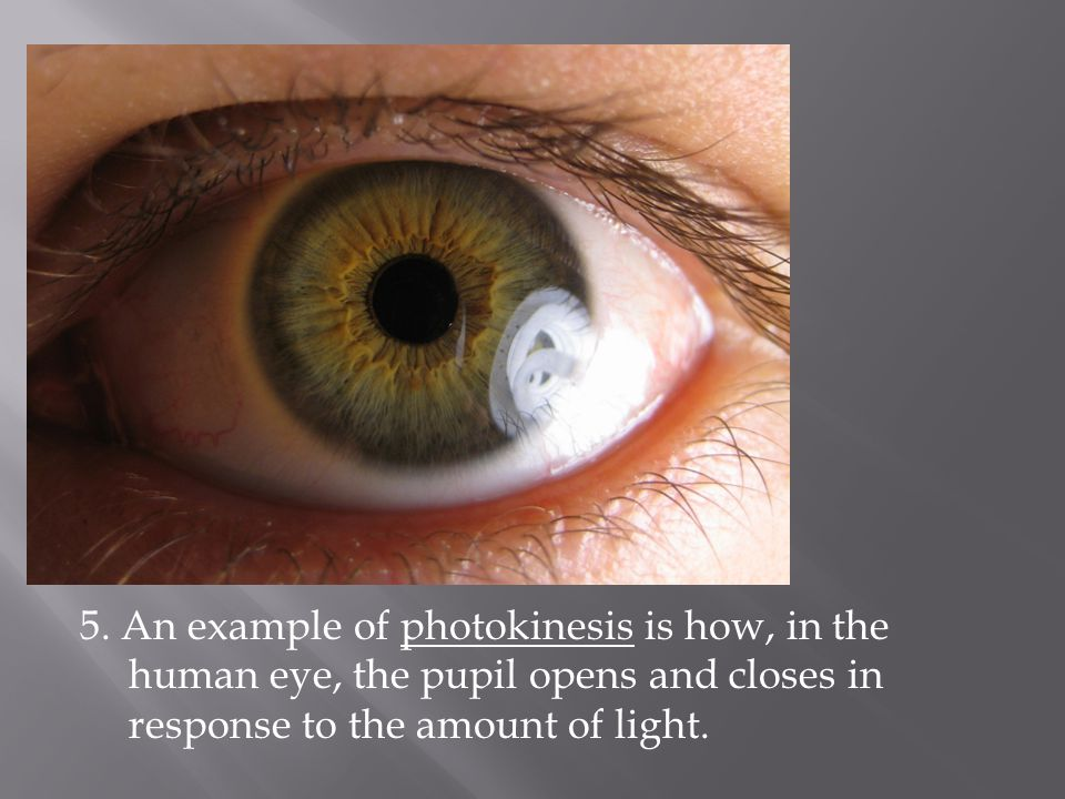 5. An example of photokinesis is how, in the human eye, the pupil opens and closes in response to the amount of light.