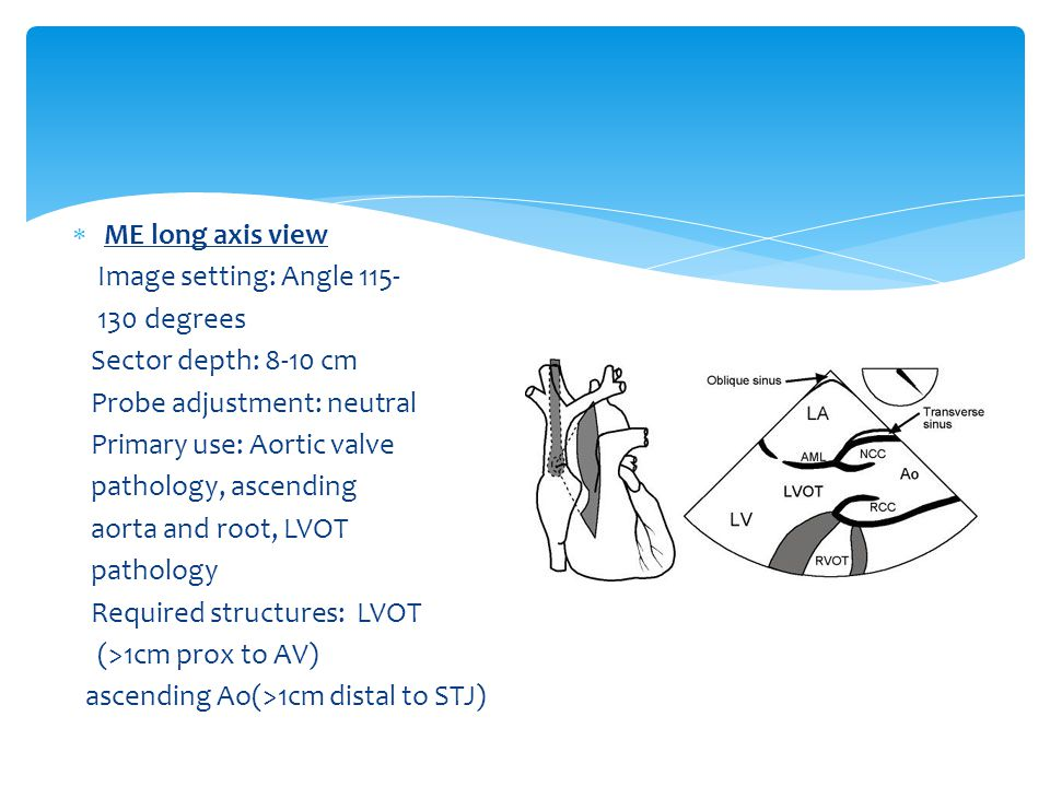  ME long axis view Image setting: Angle 115- 130 degrees Sector depth: 8-10 cm Probe adjustment: neutral Primary use: Aortic valve pathology, ascending aorta and root, LVOT pathology Required structures: LVOT (>1cm prox to AV) ascending Ao(>1cm distal to STJ)