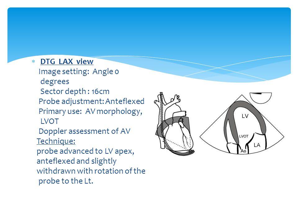  DTG LAX view Image setting: Angle 0 degrees Sector depth : 16cm Probe adjustment: Anteflexed Primary use: AV morphology, LVOT Doppler assessment of AV Technique: probe advanced to LV apex, anteflexed and slightly withdrawn with rotation of the probe to the Lt.